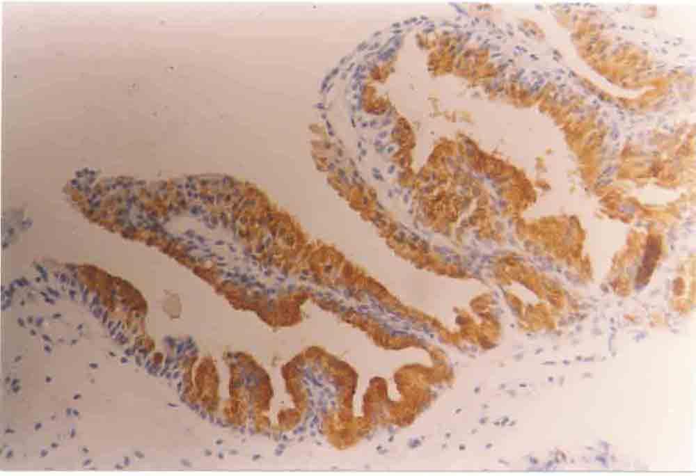 Benign Prostatic Hyperplasia. tissue or enign prostatic